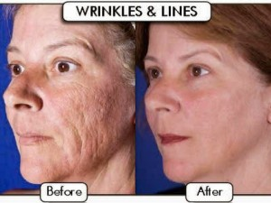 remove_wrinkle_on_face